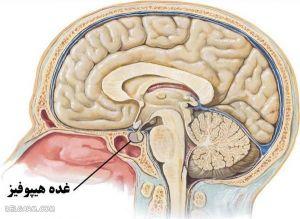 تومور هیپوفیز چیست؟