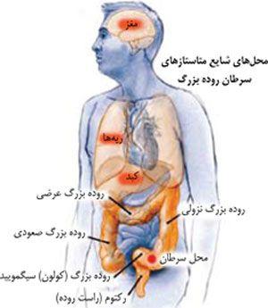 علایم سرطان روده بزرگ را بشناسید